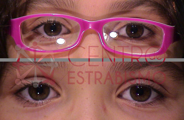 Niña de las figuras 5 y 6 que se operó a los 6 años corrigiéndose el estrabismo tanto con gafas (figura superior) como sin ellas (figura inferior)