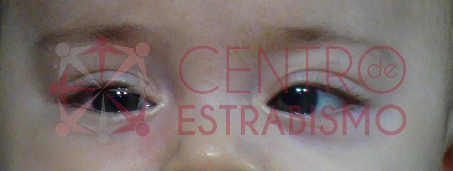bebe de 2 meses que desvía su ojo izquierdo hacia adentro