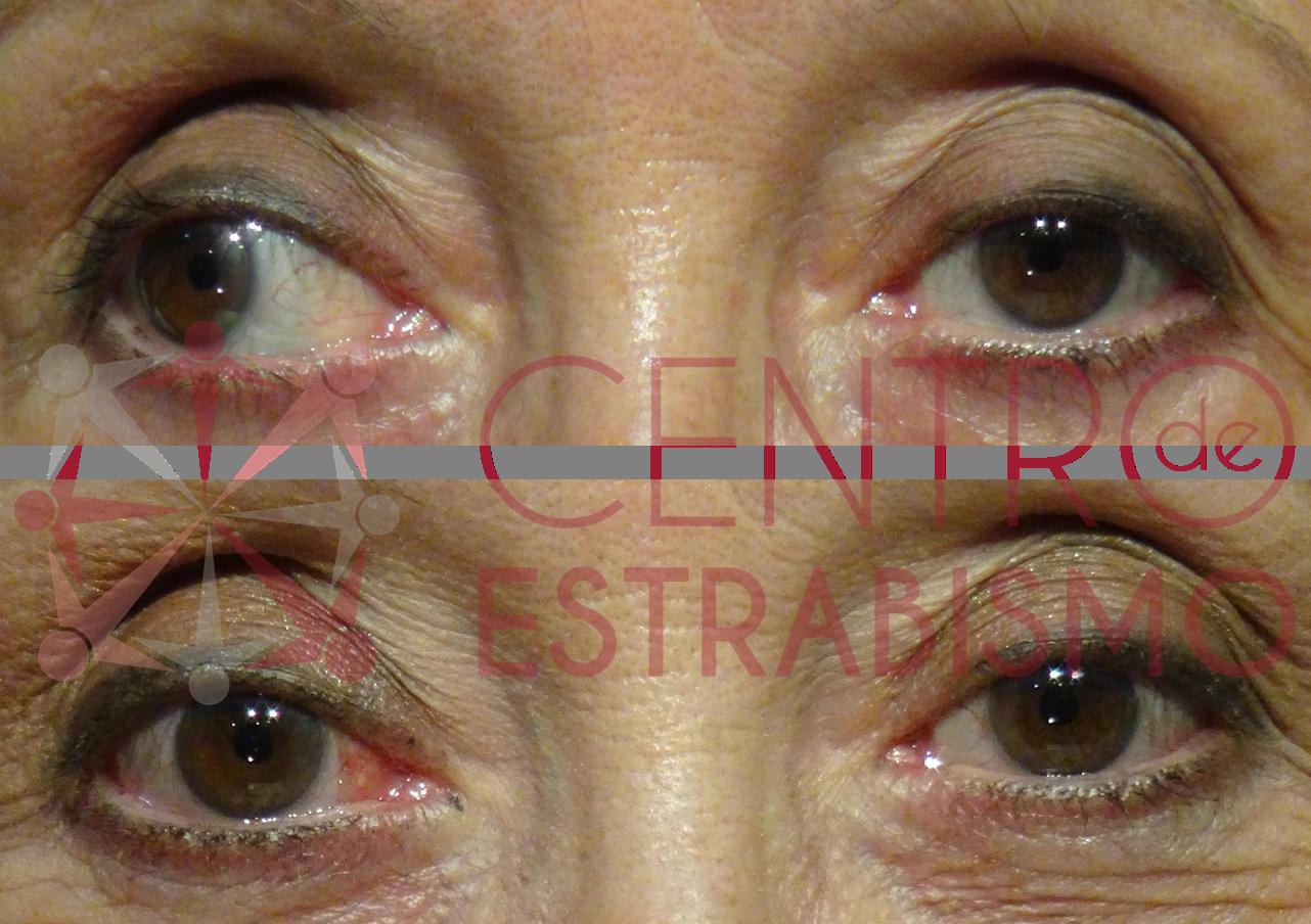 Paciente de 73 años que presentó estrabismo en la edad adulta como consecuencia de una parálisis (figura superior). Fue operada a los 74 años con resultado satisfactorio (figura inferior)