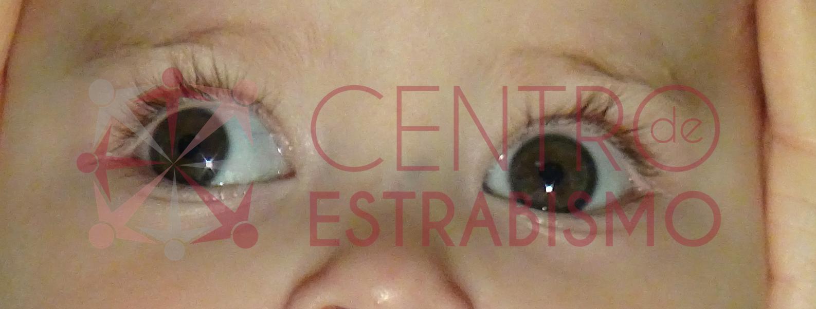 Bebe de 3 meses que desvía su ojo derecho hacia afuera