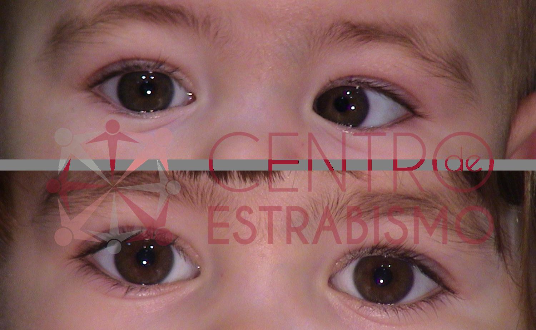 Bebe de 6 meses que desvía su ojo izquierdo hacia adentro fig. superior. Fue Operada al año de edad con un resultado excelente como se observa en la foto inferior a los 3 años de edad