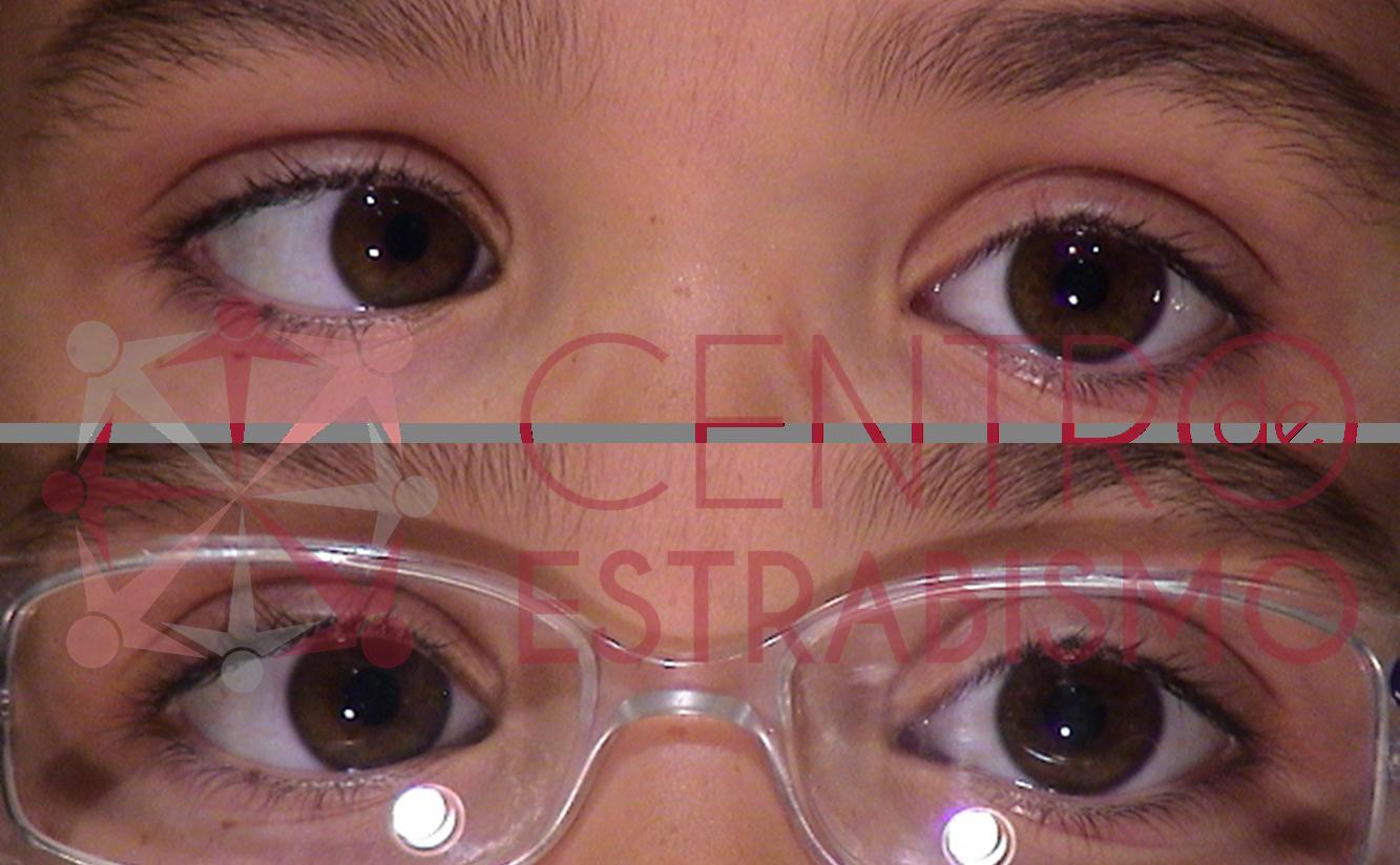 Niña de 4 años que empezó a desviar su ojo derecho hacia adentro a los 3 años (figura superior). Se le ponen las gafas y a pesar de disminuir la desviación, todavía sigue desviación hacia adentro del ojo Derecho por lo que se propone la intervención quirúrgica