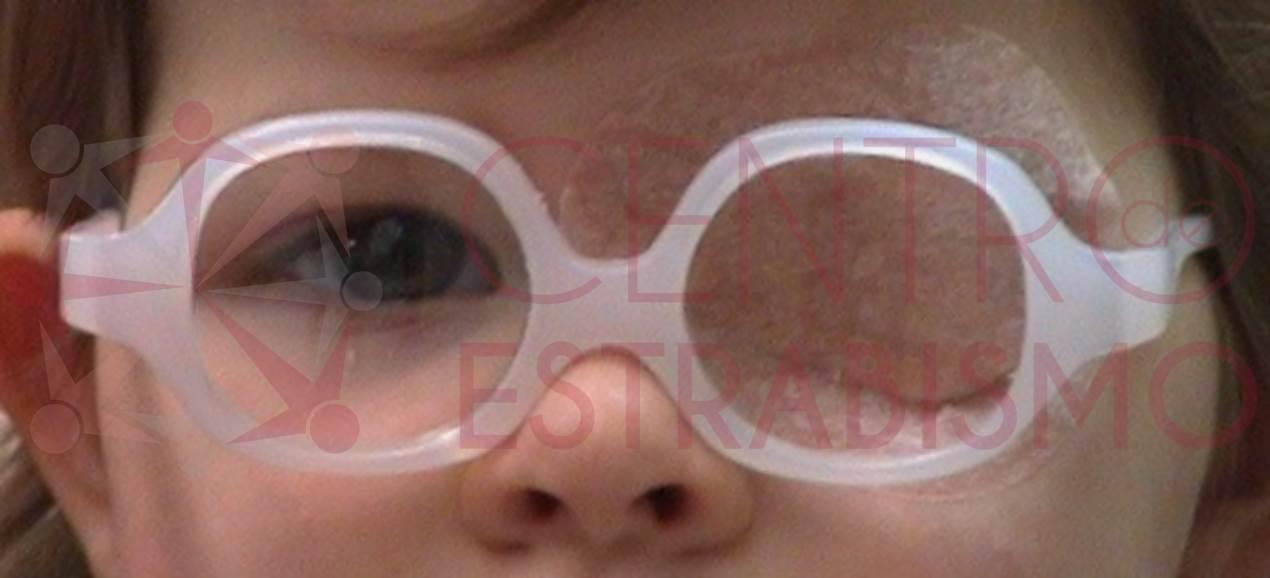 Estrabismo, parches, gafas