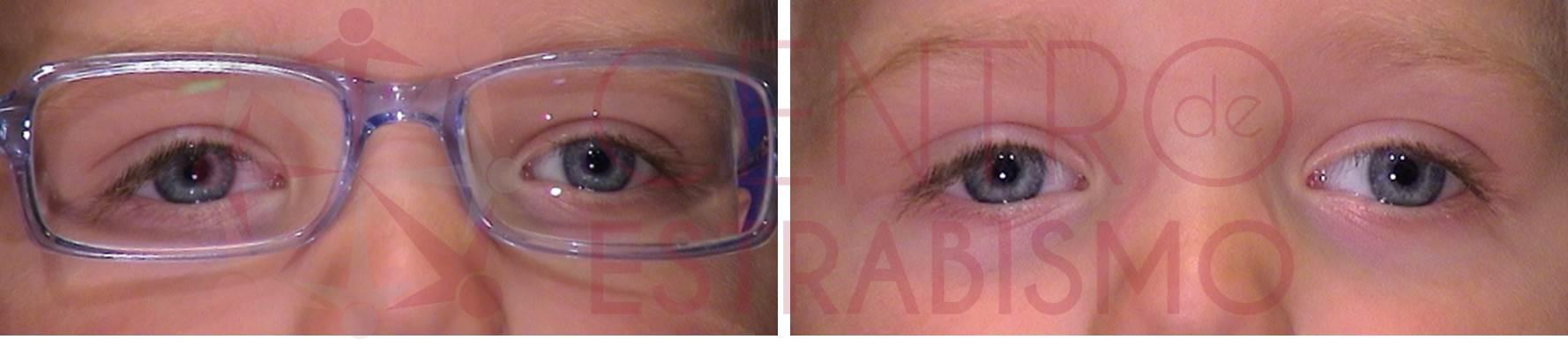 Niño con mayor miopía en ojo izquierdo que en derecho (se nota porque la lente del ojo izquierdo disminuye más el tamaño de la imagen), cuando no lleva el defecto óptico corregido aparece la desviación